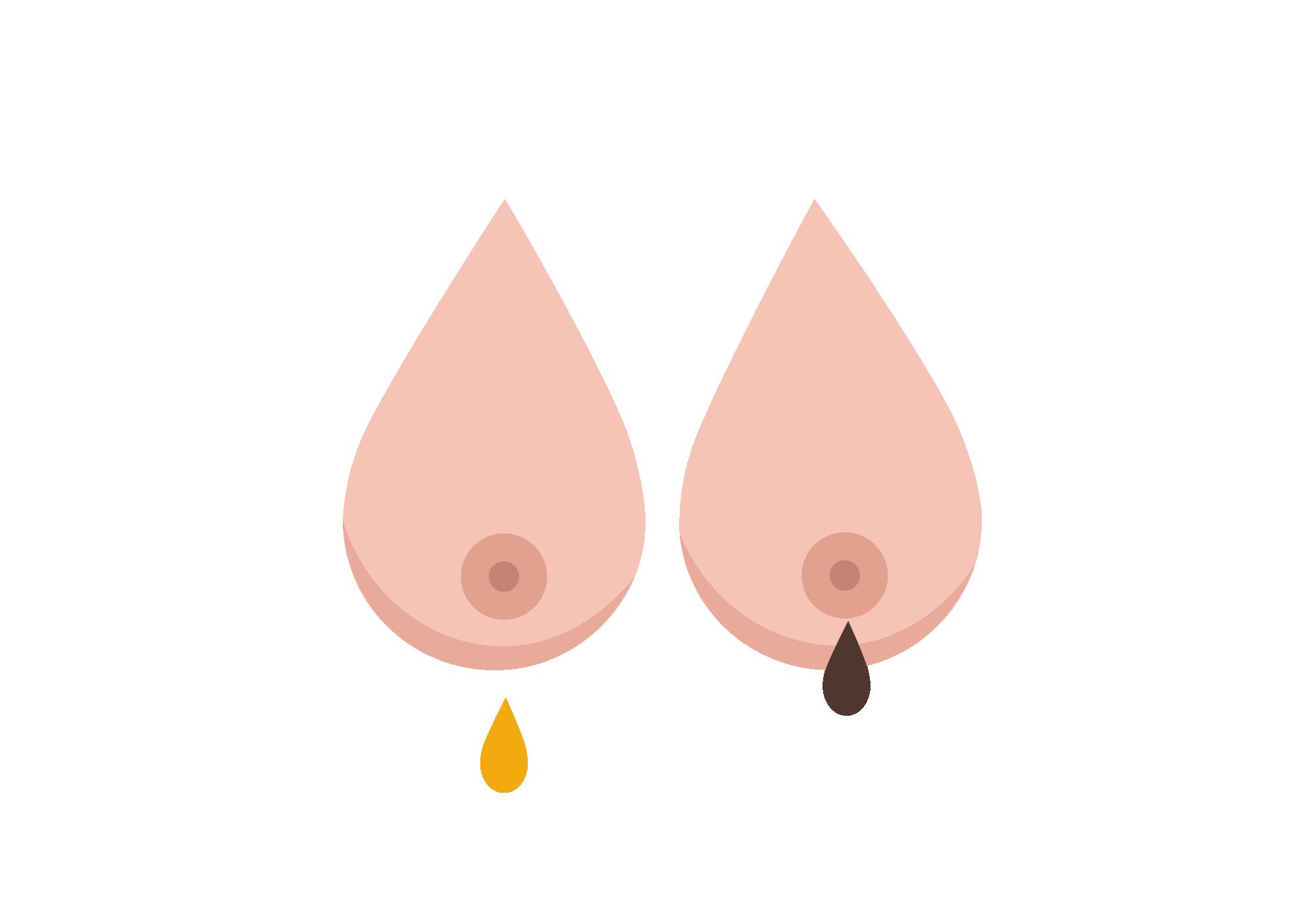 On nipple lump white Bumps on