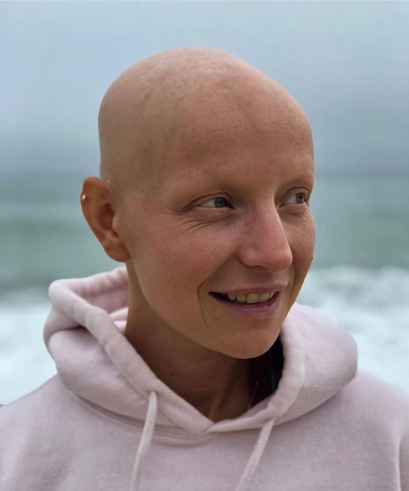 On Alopecia: Living and Thriving Bald