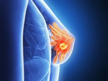 2020 Brings 3 Drugs: How the Breast Cancer Treatment Landscape Has Evolved