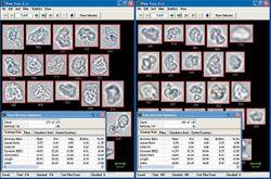 Characterizing Biologics Using Dynamic Imaging Particle Analysis