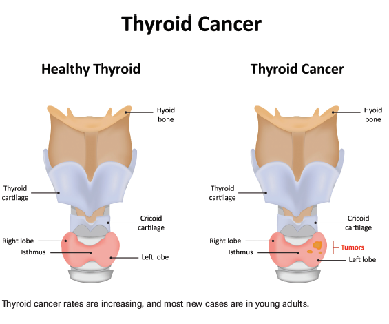 Monitoring For Thyroid Cancer Recurrence Cancer Network
