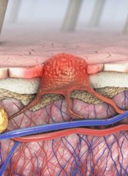 Alrizomadlin Granted FDA Fast Track Designation for Relapsed/Refractory Unresectable or Metastatic Melanoma
