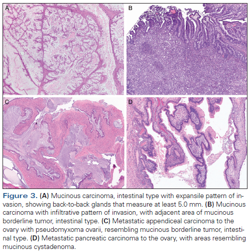 ovarian cancer histopathology papilomatosis en la piel