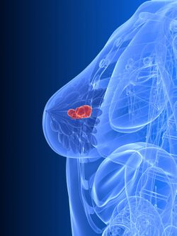 Expert Shows Promise of Neoadjuvant Endocrine Therapy in ER-Positive Breast Cancer