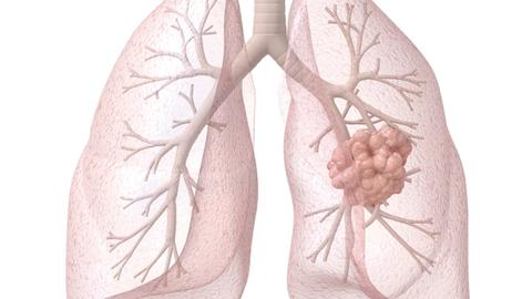 The New Era In Lung Cancer Care