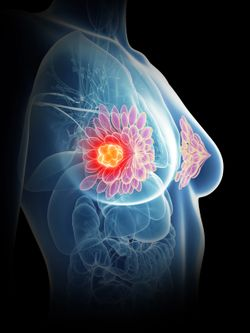 Electron Intraoperative Radiotherapy Associated With Increased IBTR Rates for Early-Stage Breast Cancer