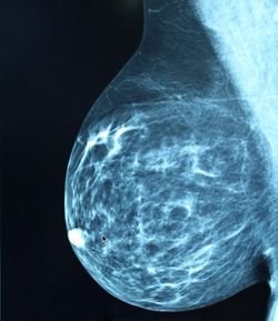 Women of Minority Race/Ethnicity, Lower Socioeconomic Status Experience Lower Digital Breast Tomosynthesis Access