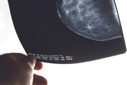 MammoScreen AI Tool Improves Diagnostic Performance of Radiologists in Detecting Breast Cancer