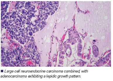 neuroendocrine cancer keytruda tratament pentru imunitate scazuta