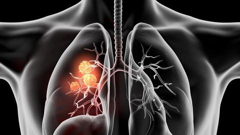 New Developments in Neoadjuvant Therapy for Lung Cancer