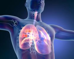 FDA Grants Priority Review to Mobocertinib for EGFR Exon 20 Insertion+ Metastatic NSCLC