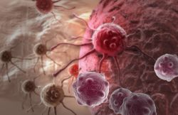 Relapsed/Refractory Follicular Lymphoma Experiences Better Outcomes With Axi-Cel Vs Currently Available Therapies