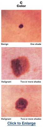 Melanoma And Other Skin Cancers