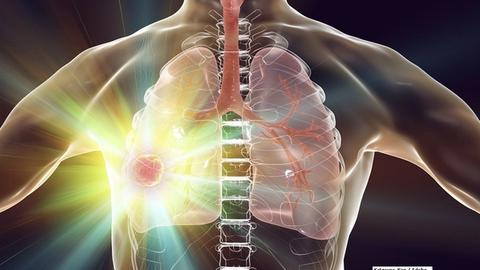 Non–Small-Cell Lung Cancer After Mantle Radiation: A Case Report and Brief Review