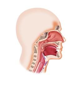 Spartalizumab Demonstrates Long Survival and Durable Responses in Recurrent/Metastatic Nasopharyngeal Cancer