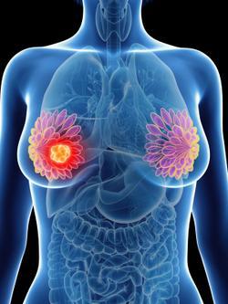 FDA Approves Dose-Escalation Label Amendment for Neratinib in HER2+ Breast Cancer