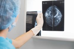 DBT Plus Synthetic Mammography Improves Breast Cancer Detection Over Mammography Alone