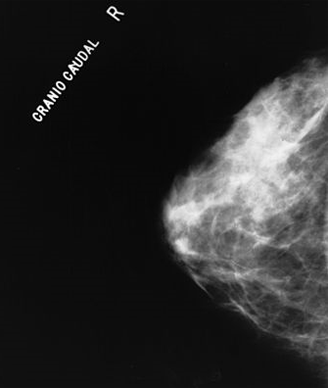 False Positive Mammograms Linked To Later Breast Cancer Risk