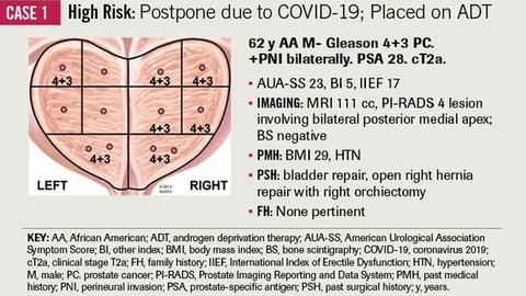 Managing Prostate Cancer Surgical Patients during the COVID-19 Pandemic: A Brief Report of the Duke Cancer Institute's Initial Experience