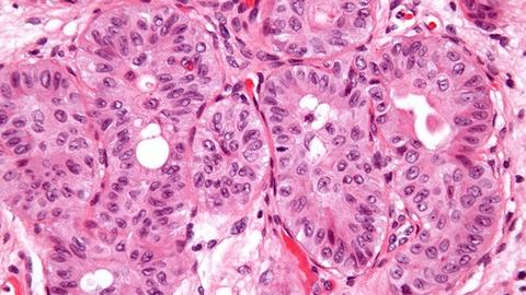 FDA Approves First Agent to Treat Locally Advanced, Metastatic Urothelial Cancer