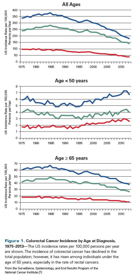 colorectal cancer under 50