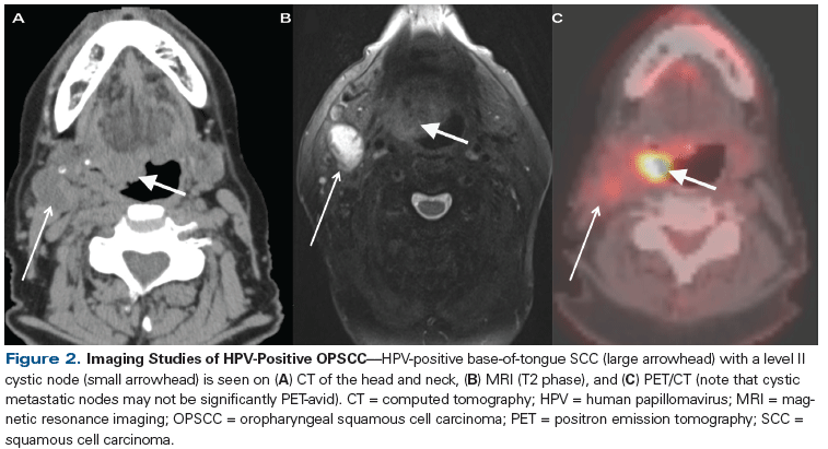 hpv cancer in neck)