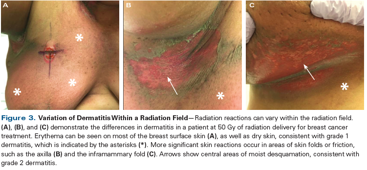 Radiation Dermatitis Recognition Prevention And Management