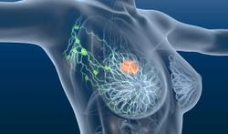 Possible Association Noted Between Tumor Immunogenicity and Survival Outcomes in HR+, HER2+ Early Breast Cancer Following Neoadjuvent T-DM1 De-Escalation