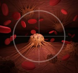 Treatment with PARP Inhibitors Increased Risk of Myelodysplastic Syndrome and Acute Myeloid Leukemia