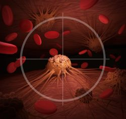 Interim Analysis Shows Positive Results for Zanubrutinib Versus Ibrutinib for Adults With CLL