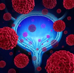 Atezolizumab Indication in US Withdrawn for Previously Treated Metastatic Urothelial Cancer