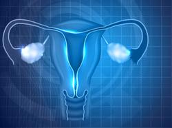 Balstilimab Plus Zalifrelimab Combo May Advance Survival in Patients With Recurrent/Metastatic Cervical Cancer