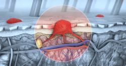 Lenvatinib-Pembrolizumab Combo Improves Outcomes in Certain Patients With Advanced Melanoma