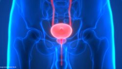 Quiz: Metastatic Prostate Cancer