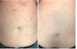 Progressive Red-to-Violaceous Papules and Plaques on the Neck and Abdominal Skin of a 70-Year-Old Woman