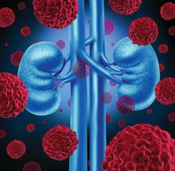 Navigating an Optimal Treatment Course for Advanced Kidney Cancer