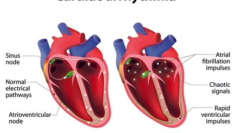 Atrial Fibrillation: Considerations for the Use of BTK Inhibitors