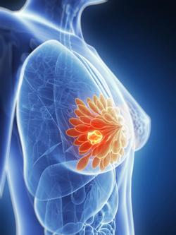 First Oral SERD Elacestrant Achieves Positive Findings in EMERALD Trial for ER+/HER2– Advanced or Metastatic Breast Cancer