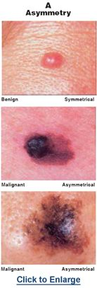 Melanoma And Other Skin Cancers Cancer Network