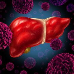 Frontline Regorafenib Plus Pembrolizumab Reveals Antitumor Activity in HCC
