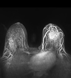 MRI Could Aid Breast Cancer Detection in Average-Risk Women