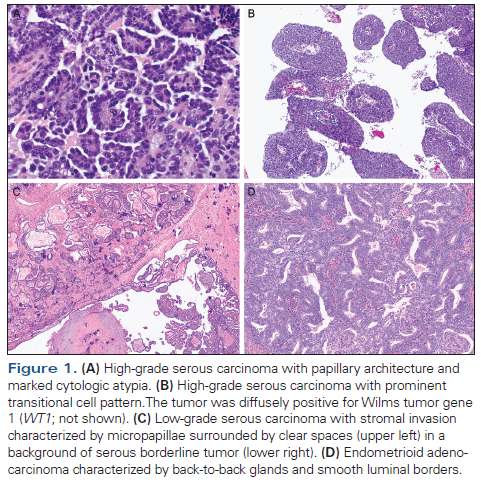 Morphologic Immunophenotypic And Molecular Features Of Epithelial Ovarian Cancer Cancer Network