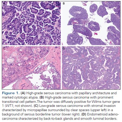 ovarian cancer histopathology după curățare de paraziți