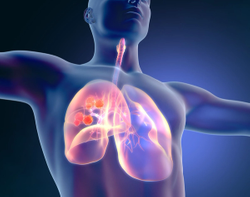 Phase 2 CITYSCAPE Trial Shows Promise for Tiragolumab in NSCLC