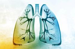 Datopotamab Deruxtecan Shows Safe Antitumor Activity in Advanced NSCLC With Genomic Alterations