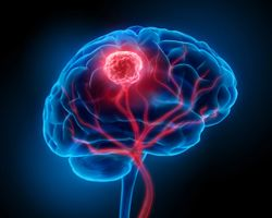 FDA Grants Fast Track Designation to Paxalisib for Patients with Glioblastoma