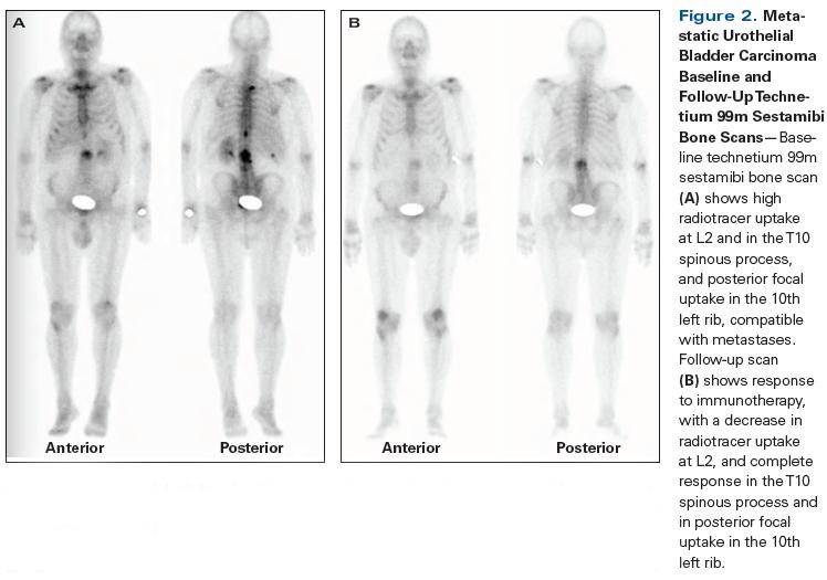 Metastatic cancer of the bladder