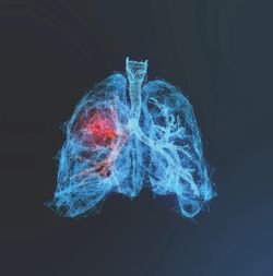 Diagnostic AI Tool for Identifying Early-Stage Lung Cancer Earns FDA 150(k) Clearance