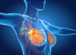Numerically Improved pCR Not Significant With SD-101 Plus Pembrolizumab in HER2– Breast Cancer