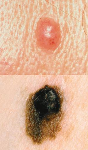 Web Based Course Improved Physician Skin Cancer Skills Cancer Network